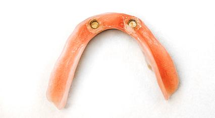 Protese/delprotese