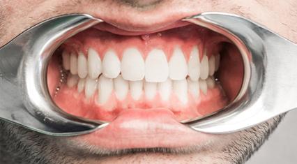 Det blir ikke hull i en tann som er ren…