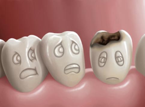Alt du ikke visste om syreskader på tennene