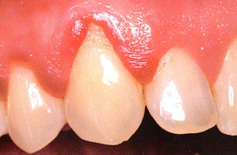 Blødende tannkjøtt og løse tenner?
